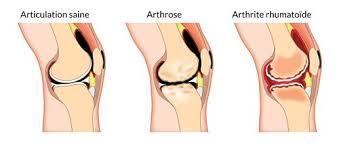 Arthrite : 6 Aliments à Éviter de Toute Urgence (et Que Manger à la Place).