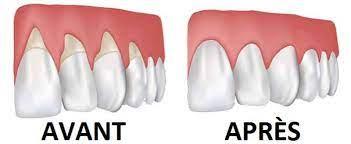 Comment traiter le déchaussement des dents ?